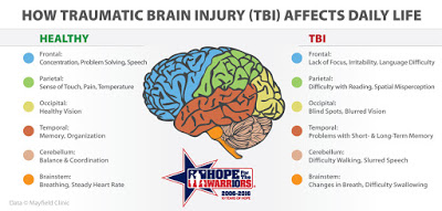 TBI-graphic28529