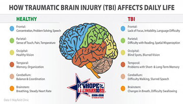 How Traumatic Brain Injury (TBI) Affects Daily Life